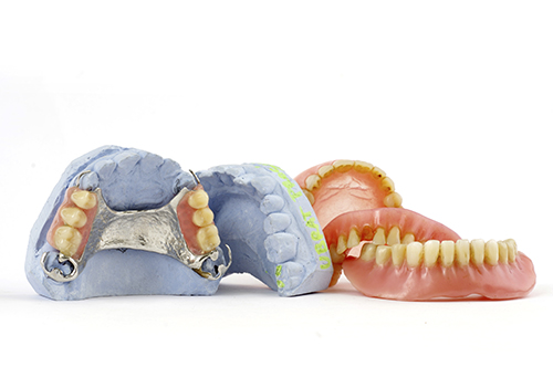 Replacing teeth with dentures at Samuel S. Wong, DDS